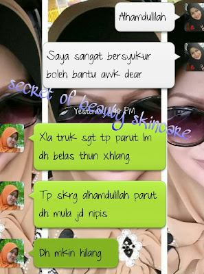 FEEDBACK CUSTOMERS BILA MENGGUNAKAN SECRET OF BEAUTY SOB