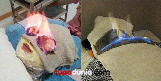 Rahasia Kecantikan Salon Ini Adalah 'Membakar' Wajah Klien