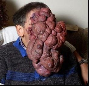 Algunos de los tumores más horribles de la medicina