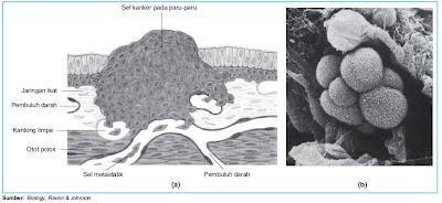 Sel kanker pada permukaan bagian dalam paru-paru (a) dan pada alveoulus (b)