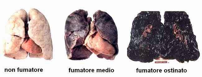 Il modo più facile di smettere di fumare