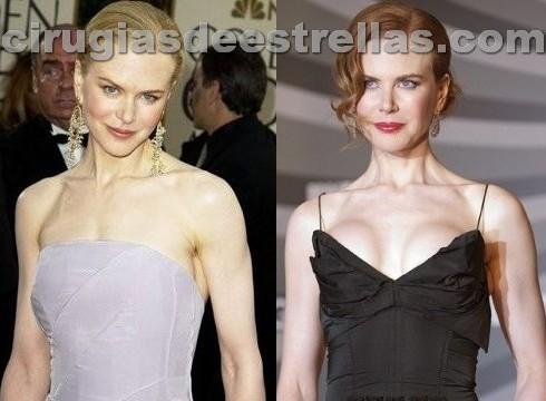 Nicole Kidman y su cirugía de aumentos de senos