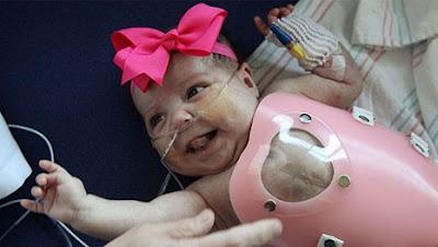 Bebê nasce com o coração fora do peito e consegue sobreviver com ajuda de um escudo