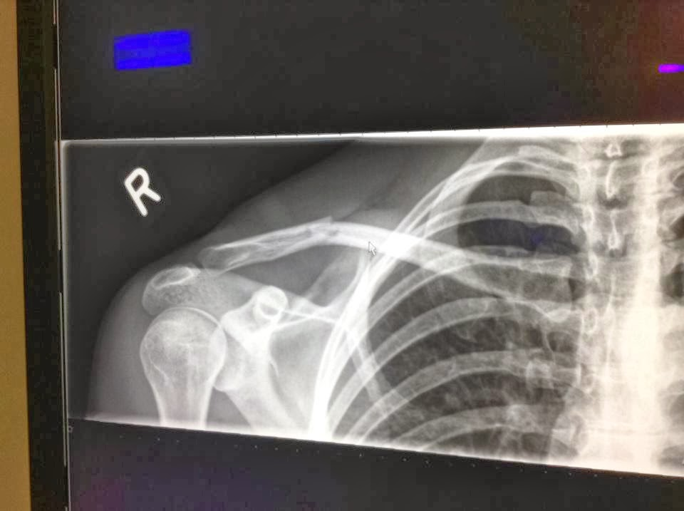 how to know if your collarbone is dislocated