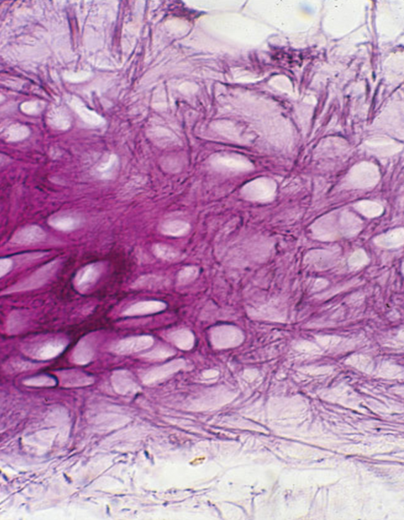 Photo-micrograph of elastic cartilage  stained for elastic fibers    Elastic Cartilage