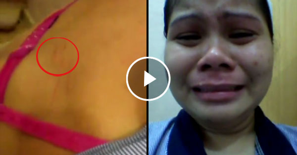 OFW sought help online with a video showing her bruises and scratches after taking abuse from her employer