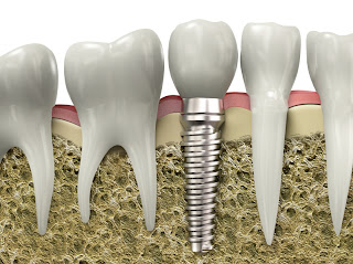 Dental implants in NJ