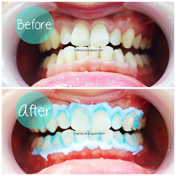 Da Sisters Blog Whitening Teeth At Jakarta Smile Dental Clinic