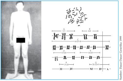 Penderita sindrom klinefelter dan kariotipenya