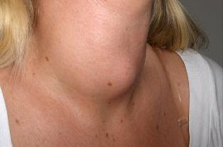 Hyperthyroidism Causes, Symptoms And Treatment