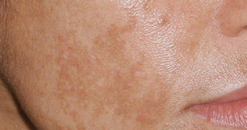 Eczema sulle dita di trattamento di mani della casa