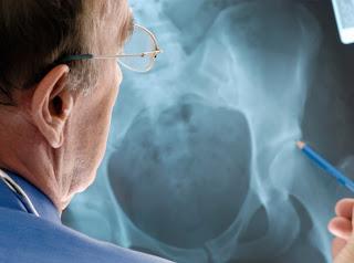 Alzheimer's Drug Prevent Bone Fractures