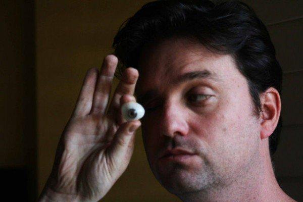 عجائب الدنيا وهل تعلم - رجل يستبدل مقلة عينه بكاميرا صغيرة