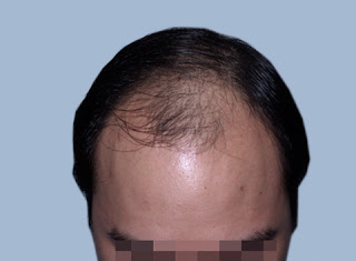 after hair transplant by best plastic surgeon kolkata top cosmetic surgeon india no hair loss