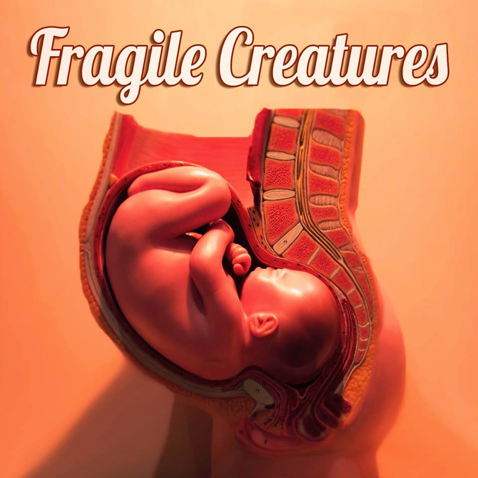 http://www.d4am.net/2014/09/fragile-creatures-fragile-creatures-ep.html