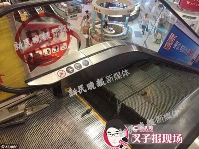 Lagi Video Ngeri Mangsa Diratah Eskalator, Kaki Lelaki Ini Terpaksa Dipotong!