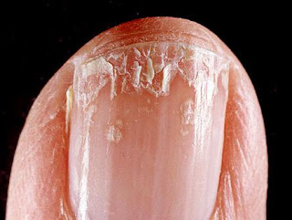 Peeling Nails? Here's 8 Reasons Why It's Happening