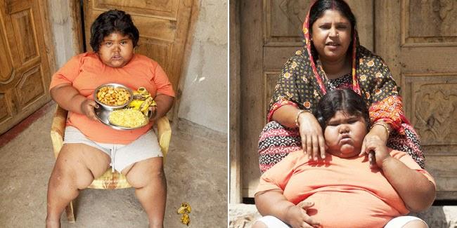 kesehatan :  Anak Tergemuk di Dunia