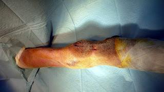 artrodesis cubito radio carpal
