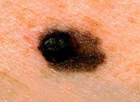 skin moles cancer