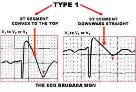 what is brugada syndrome management