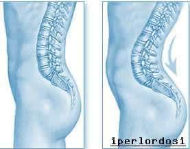 Ginnastica posturale e personal trainer for Muscolo interno coscia nome