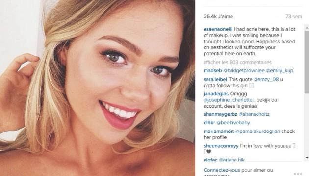 Une star d'Instagram Essena O'Neill dénonce son métier avec courage
