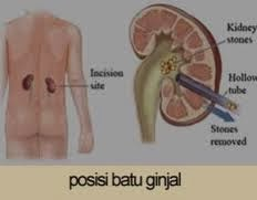 Ciri-ciri Penyakit Batu Ginjal,Gejala Dan Penyebab