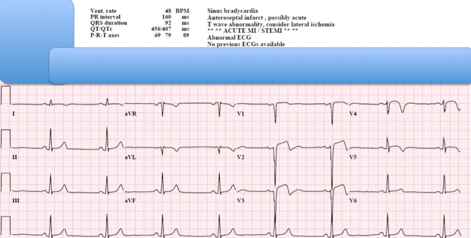 Triple vessel coronary artery disease presenting as a ...