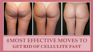 how to get rid of celulite