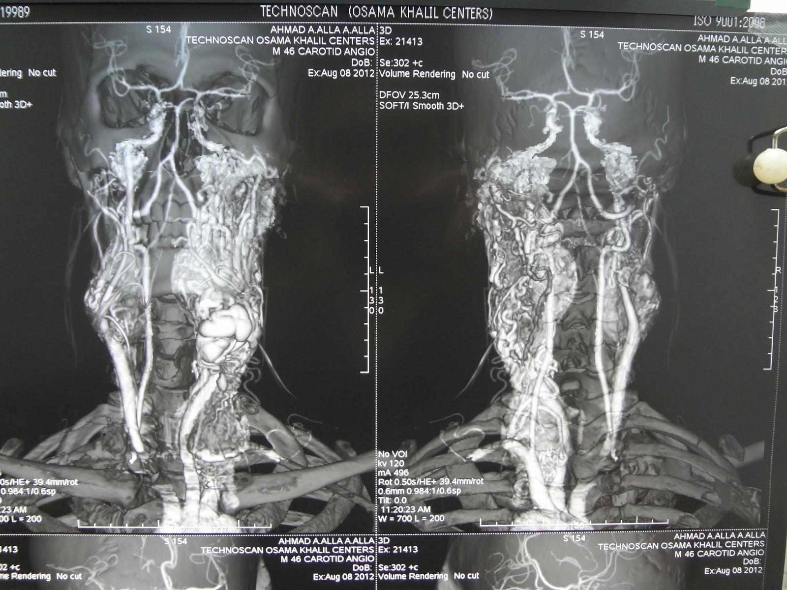 radiology ENT, Maxillofacial, Head and neck, neurosurgery, Dentology ...