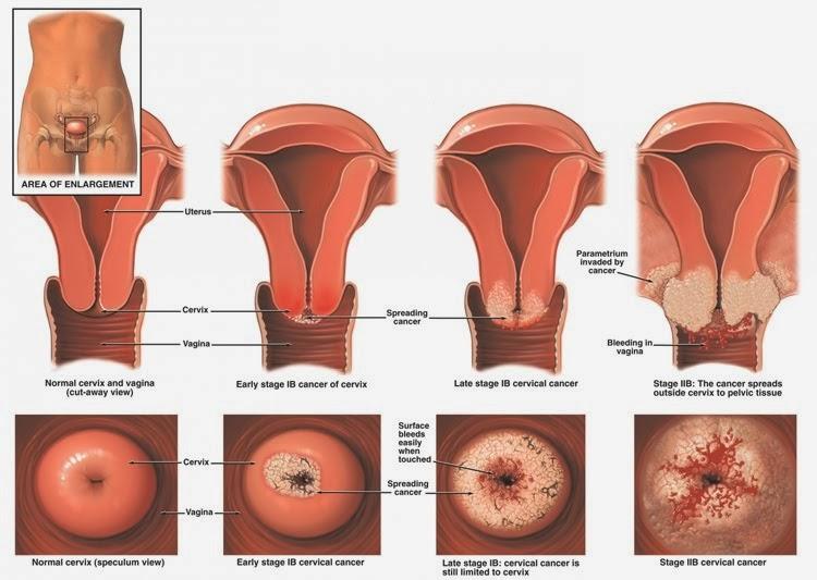 Sangrado vaginal GINECOLOGÍA Y OBSTETRICIA