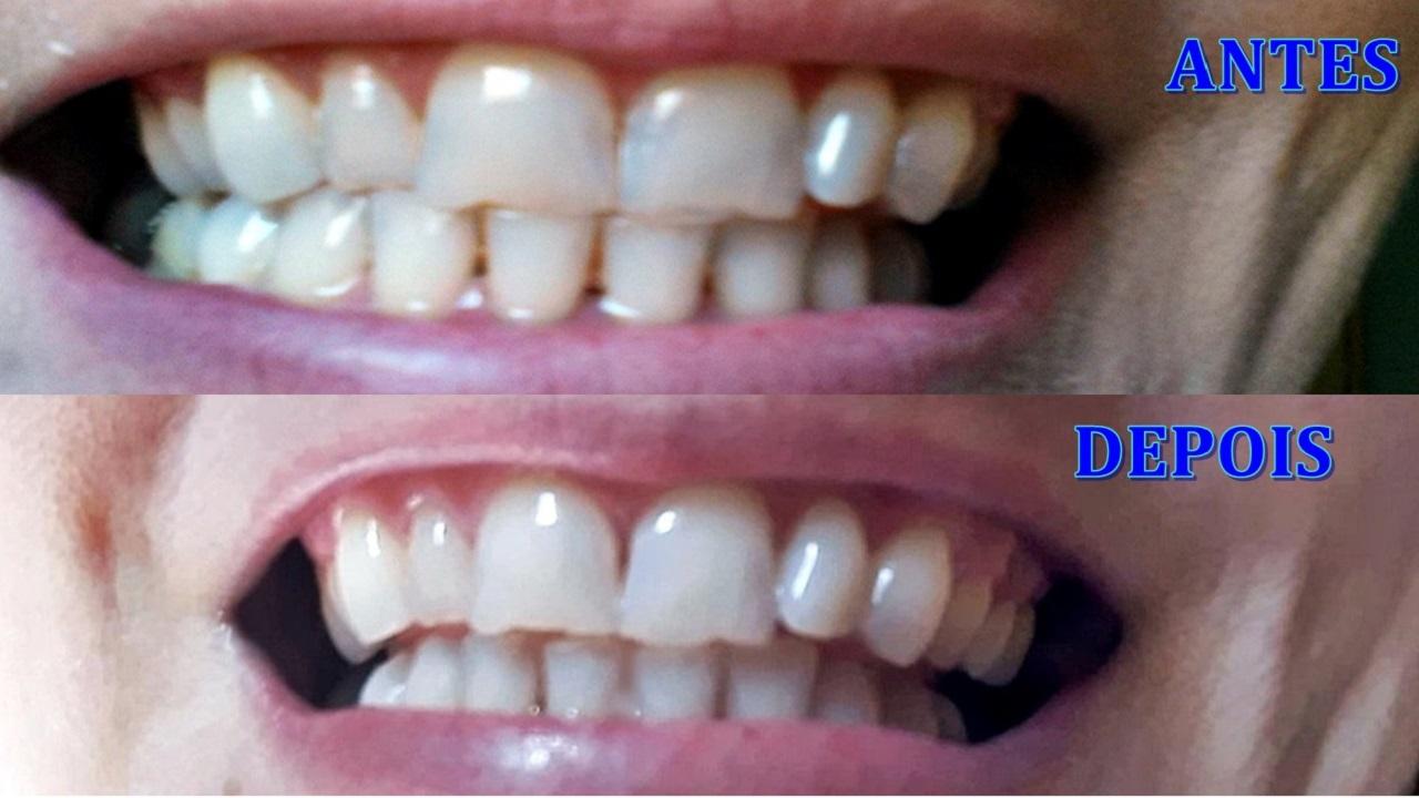 Clarear Dentes Com Fita Adesiva Branqueadora Dicasf Uteis