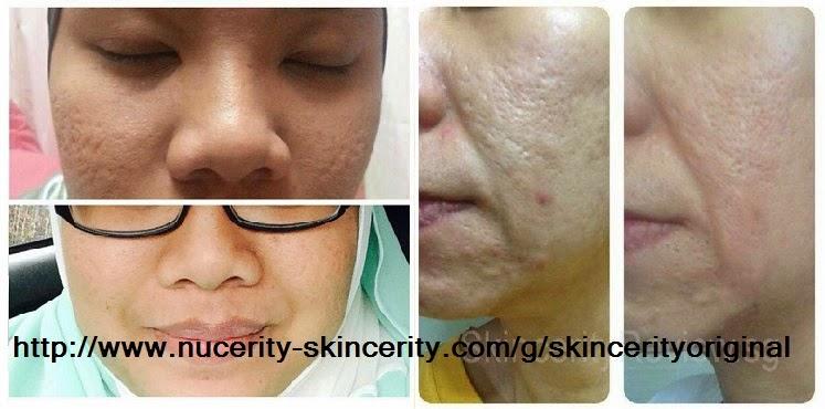 Testimoni Skincerity