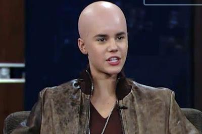 ¿Esta calvo Justin Bieber?