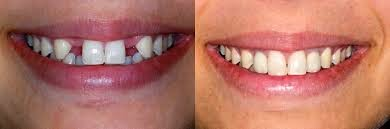 http://www.bangaloredentistimplant.com/implant-dentistry/