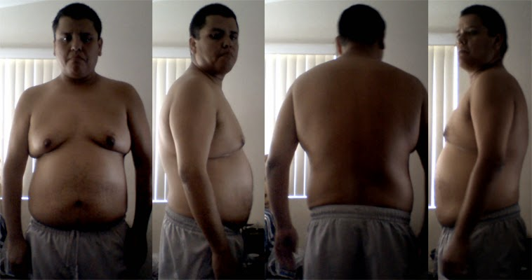 before weightloss