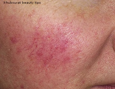 Dermatologist Natural Cure For Rosacea