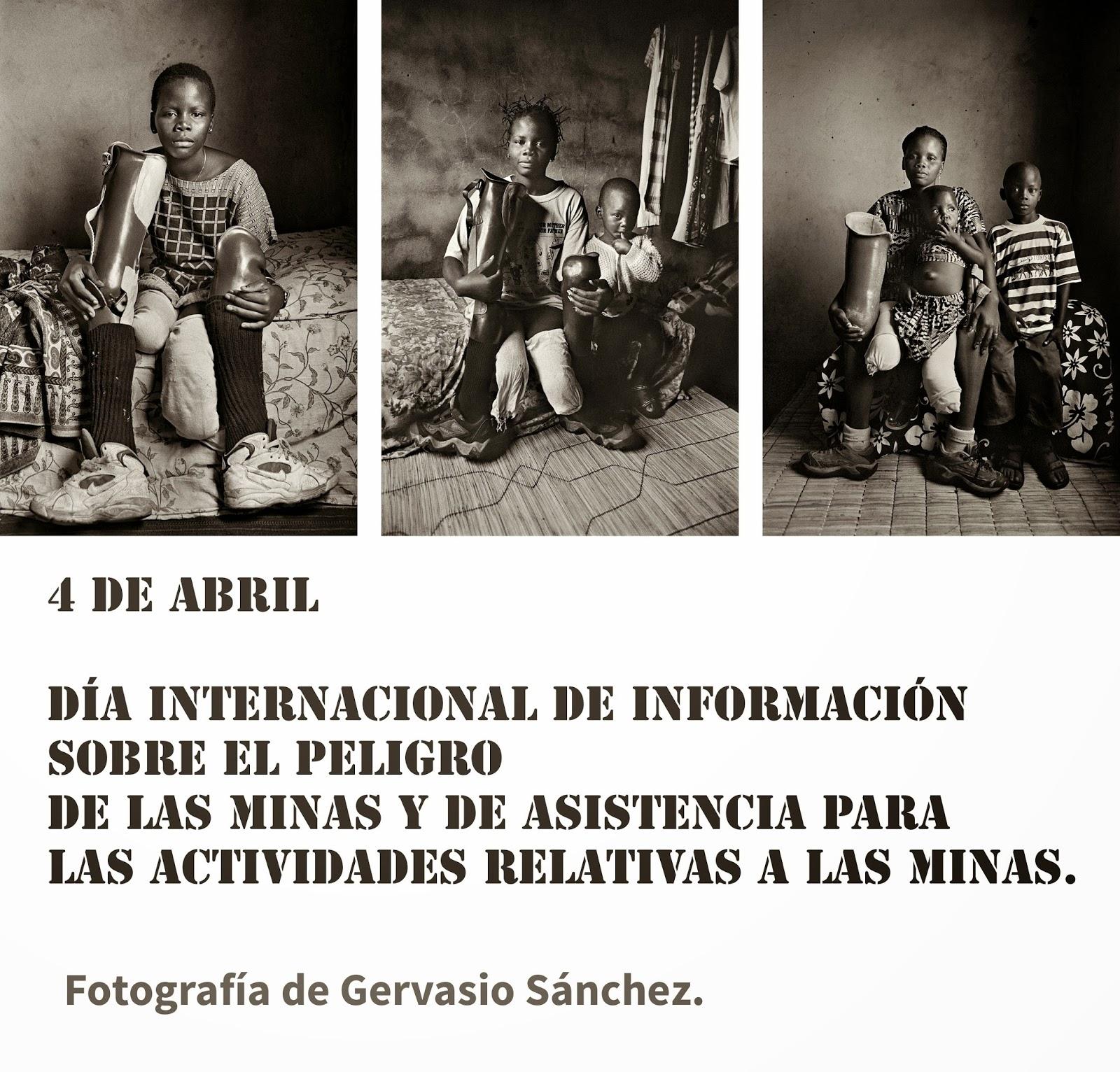 Fotografía de Gervasio Sánchez de niños con las piernas mutiladas por las minas antipersonales.