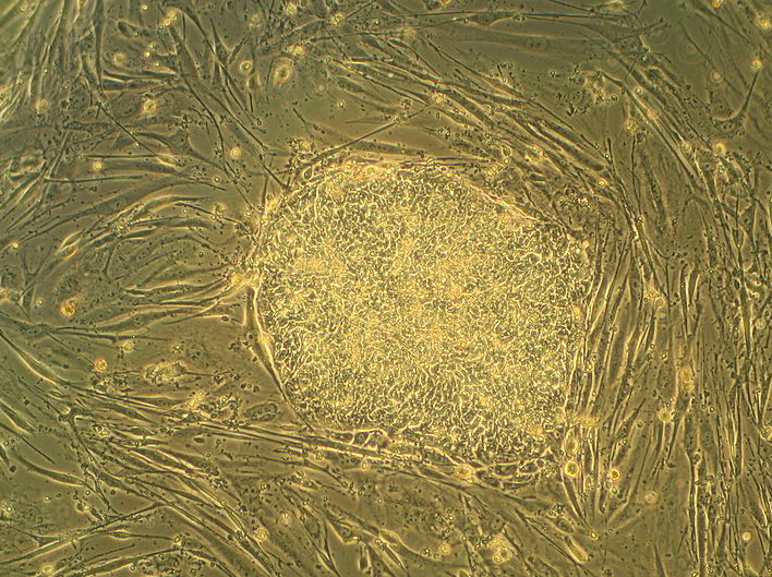Image showing a human embryonic stem cell culture