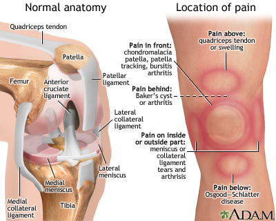 Knee pain giving you grief mobilizeme physiotherapy knee anatomy and location of pain ccuart Choice Image