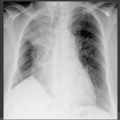 ... end of diaphragm at an inferior accessory fissure major fissure or inferior pulmonary ligament. It is commonly seen in upper lobe collapse but may also ... & Chest Medicine Made Easy-Dr Deepu: January 2016