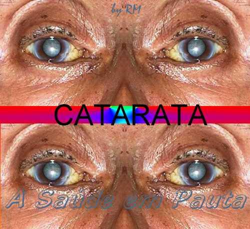 Um dos problemas que podem acontecer no nosso órgão da visão é a catarata. 4e97fe6dd0