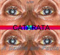 Um dos problemas que podem acontecer no nosso órgão da visão é a catarata.