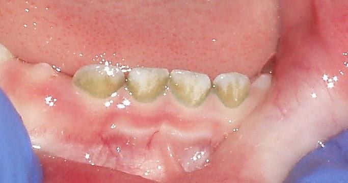 На нижних зубах коричневый налет