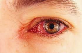 SEBAB SAKIT MATA, MITOS TENTANG SAKIT MATA, bagaimana sakit mata menular, rawatan sakit mata, mata merah, cara menghilangkan mata merah.