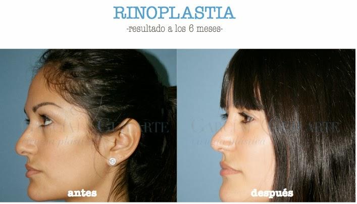 rinoplastia_operacion_nariz