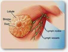 Image Obat Herbal Kanker Payudara yang Aman