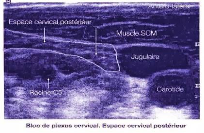 Quelles complications à cervical osteokhondroze