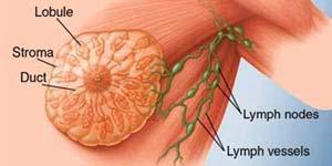 Mitos Tentang Kanker Payudara Wanita